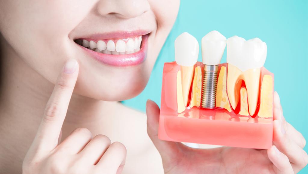 dental implant-kochi