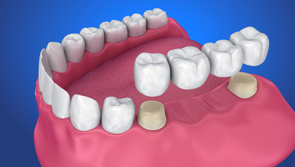 dental implant treatment kochi