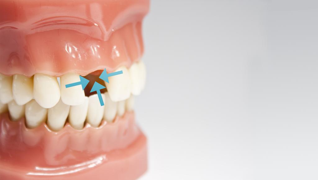 Teeth-gap-dental-implant